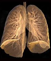 Emphysema lung